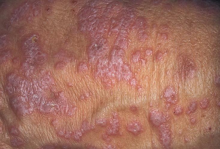 Красный плоский лишай у человека фото лечение в домашних условиях быстро
