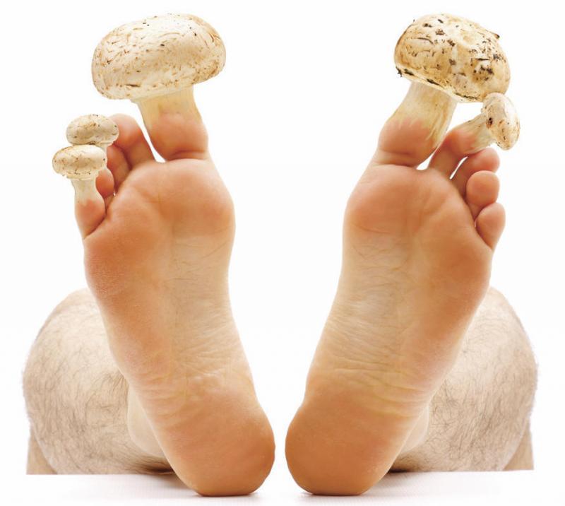 Народная медицина от грибока ногтей ног
