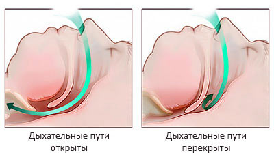 Возрастные изменения носоглотки
