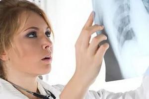 Трактовка результатов рентгена легких