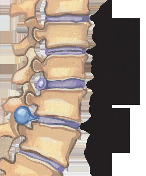 Osteohondroz 5