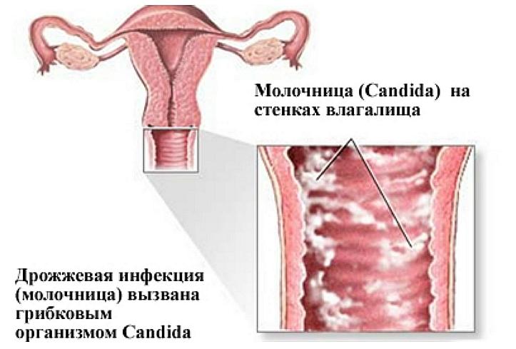 Молочница: причины развития
