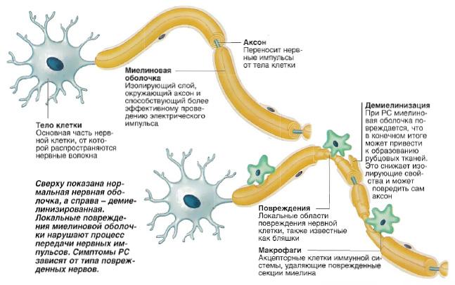 1438533935_priznaki-rasseyannogo-skleroza