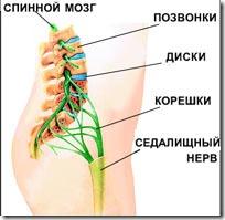 Причины защемления седалищного нерва