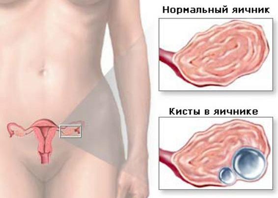 Анализы при кистах и опухолях яичников