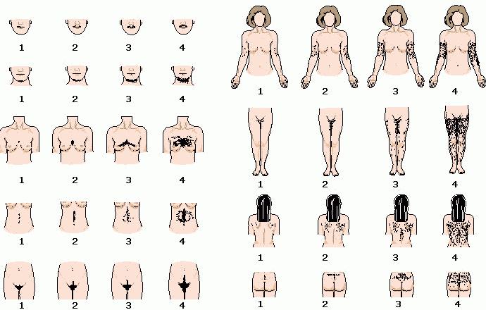 Обследования при гирсутизме у женщин