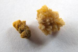 Фосфатные камни в почках: лечение и диета