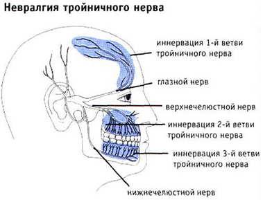 Виды и симптомы невралгии