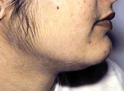 Обследования при гирсутизме у женщин и алопеции