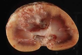 Что происходит в почках при тубулоинтерстициальном нефрите?