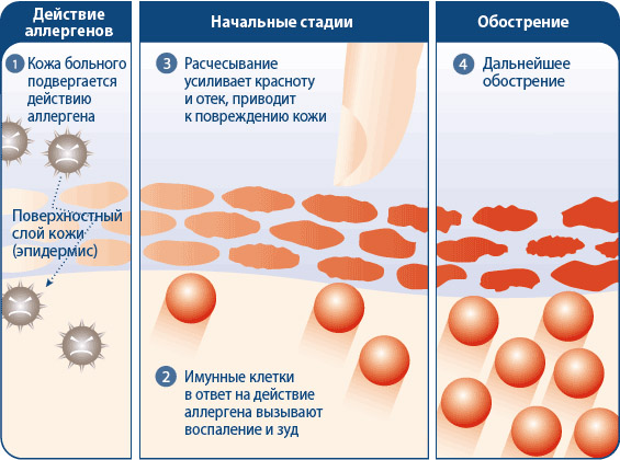 Причины развития аллергического дерматита