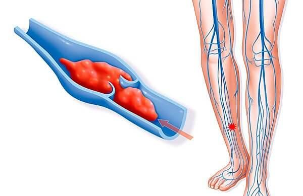 Тромбоз глубоких вен нижних конечностей: симптомы, лечение ...