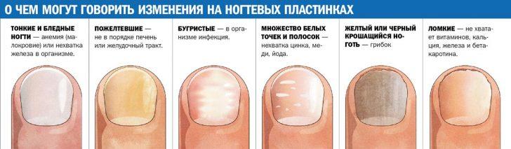Характерные внешние изменения ногтей