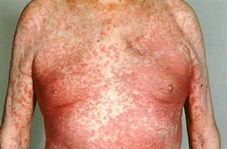 Exfoliative-dermatitis-3
