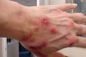 kontaktnii-dermatit-na-rykah