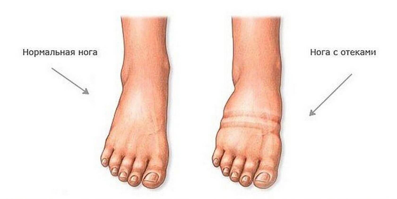 как бороться с отеком ног