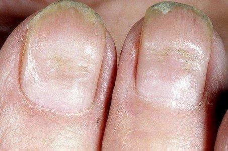 При лечении грибка ногтей образуется корочка вокруг ногтях