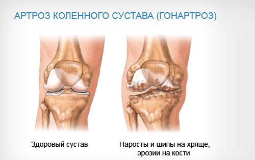 Лечение при артрозе коленного сустава