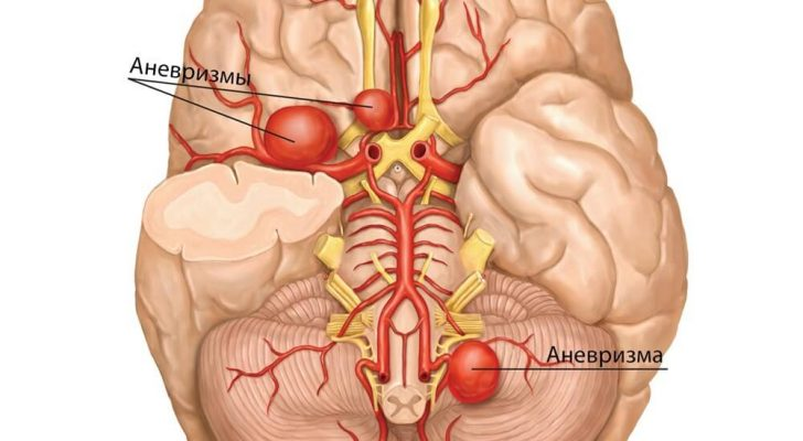 anevrizma-sosudov-golovnogo-mozga