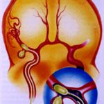 anevrizm mozga