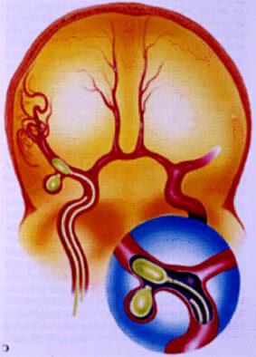 Разрыв аневризмы в желудочке головного мозга