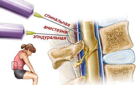 spinalnaja-epiduralnaja-e1425561671411
