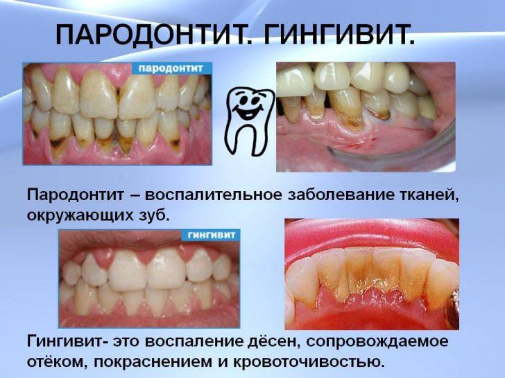 parodontit-giginvit-min