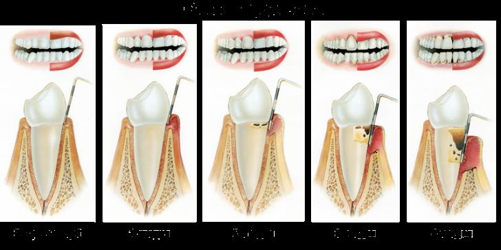 stadii-razvitiya-parodontita-min