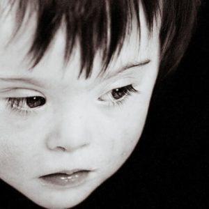 sindrom dauna
