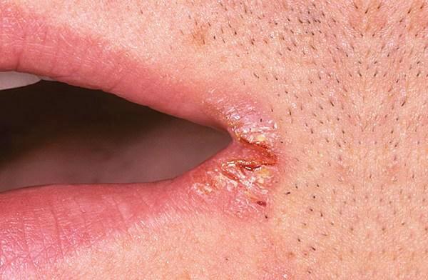 Как вылечить заеду в уголках губ быстро