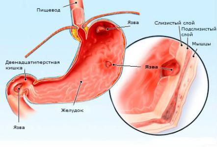 Боль в желудке после еды - причины,симптомы, профилактика, лечение