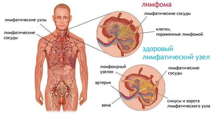limfoma-vidy-priznaki