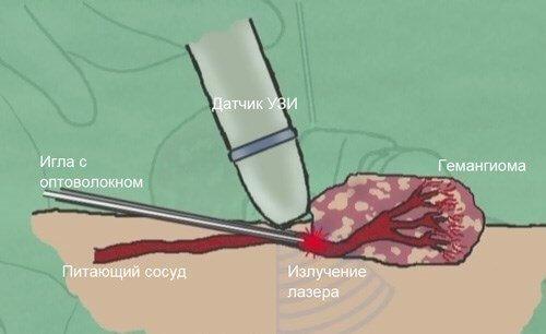 gemangioma