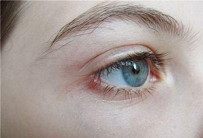Чирей на глазу лечение - Всё о кожных заболеваниях