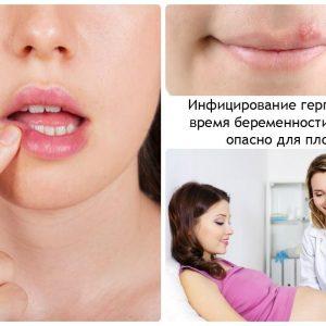 infecirovanie gerpes