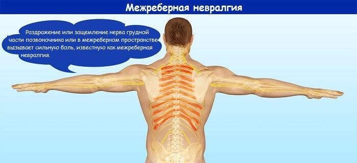 mezhrebernaja-nevrolgija-5