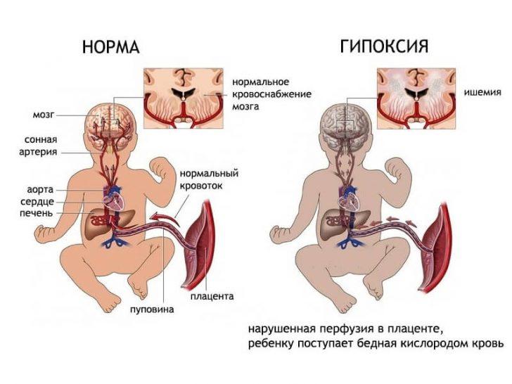 narushenie_krovotoka_pri_beremennosti_diagnostika