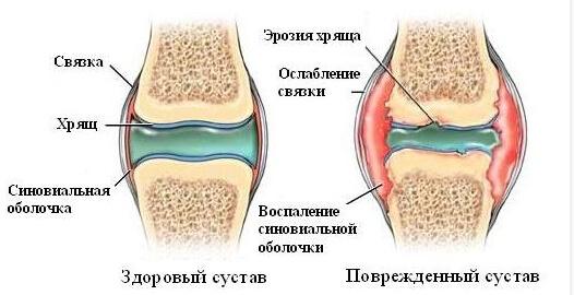 Что такое хондропротекторы для суставов