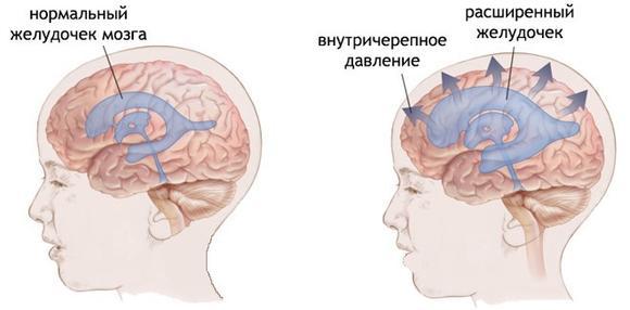 kak-uznat-vnutricherepnoe-davlenie-1