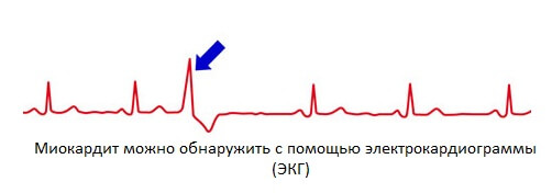 ostryj-miokardit
