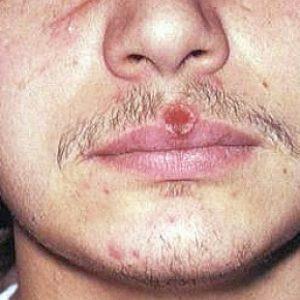 sifiliss