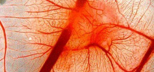 Болезнь васкулит симптомы и лечение