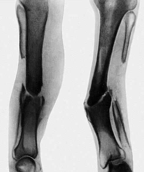 Ложный сустав после перелома кости: Причины, Классификация, Клиника, Диагностика, Лечение. Что такое ложный сустав и каковы причины его образования при переломе? Врожденные ложные суставы
