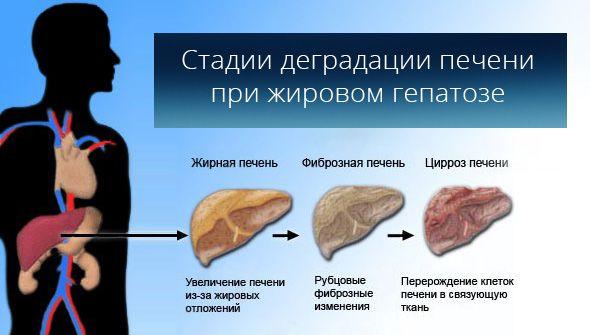 Simptomy_zhirovoy_gepatoz