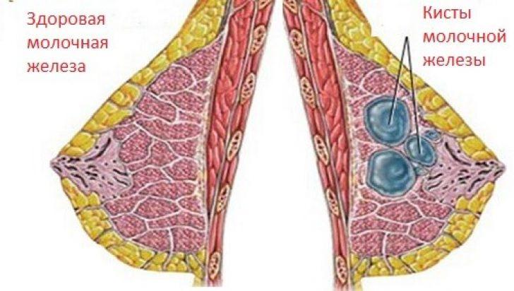 Киста молочной железы: причины, симптомы и лечение, удаление кисты груди у женщин