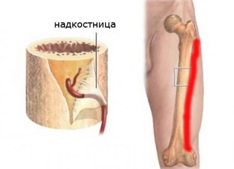 Периостит нижней и верхней челюсти: симптомы и лечение воспаления надкостницы, хронический периостит
