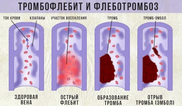 tromboflebit-poverkhnosnykh-ven (1)