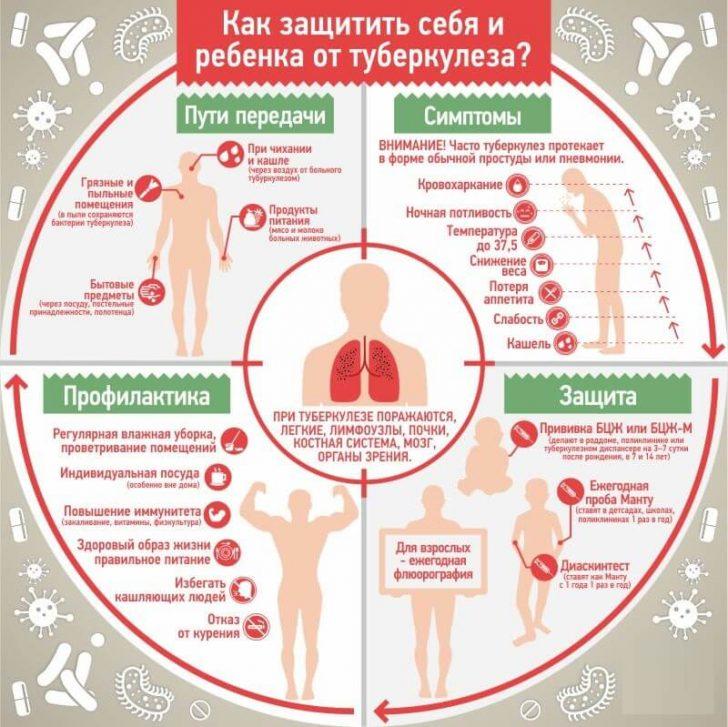 tuberculez