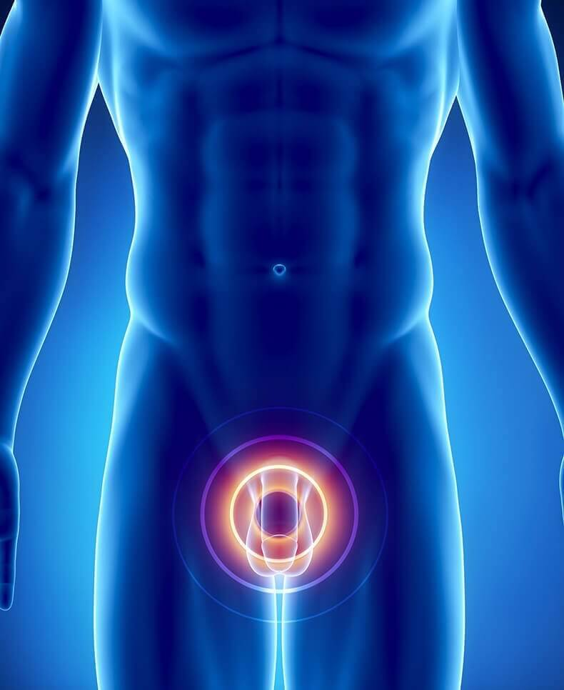 Симптоматика и возможные осложнения абсцесса простаты