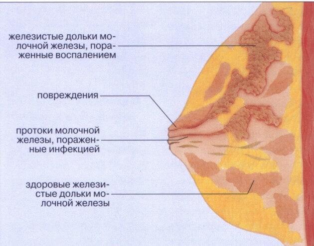 mastit